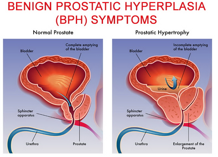 pae prostate surgery